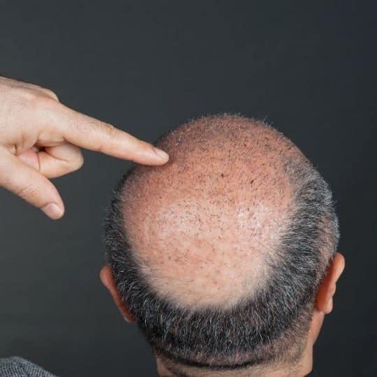 hårimplantat på utväxt
